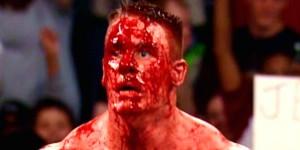 جان سینا با سر زخمی
